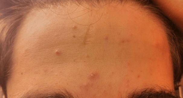 Clogged pores forehead