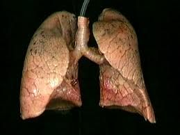 Image result for human lungs real | inside the body ...
