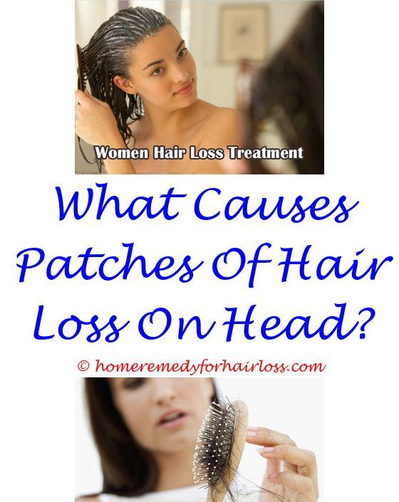 14 best Vitamin D Hair Loss images on Pinterest