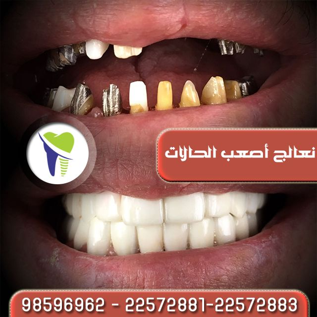 زراعة الأسنان الحل النهائي لفاقد الاسنان احصل على إبتسامة رائعة يوجد تقسيط عن طريق بيت التمويل ا Convenience Store Products Convenience Store Convenience