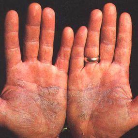 Foot Psoriasis Natural Treatment