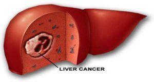liver cancer symptoms and precautions