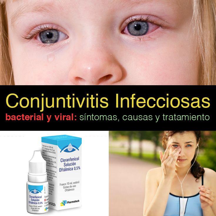 La conjuntivitis es la inflamación de la conjuntiva que resulta de la dilatación de los vasos sanguíneos y ocasiona la apariencia del ojo rojo. La inflamación puede estar limitada a la conjuntiva (conjuntivitis primaria) o puede afectar otras áreas, como el iris por ejemplo, debido a enfermedades secundarias. En caso de que los síntomas no estén asociados a una conjuntivitis infecciosa es importante descartar otras causas como: Trauma conjuntival. Condiciones degenerativas de la conjuntiva…