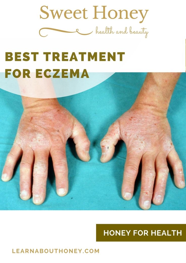 Best Treatment for Eczema? Atopic dermatitis, also known as simply dermatitis or eczema, is a condition of the skin that inflicts it with red, irritable, itchy and rough surfaces. aAlthough no type of eczema poses a threat to the afflicted, the disease can be crippling in other ways. https://learnabouthoney.com/best-treatment-for-eczem