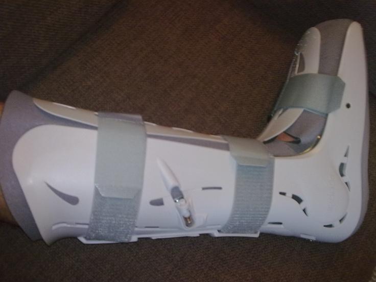 tengo una pierna rota