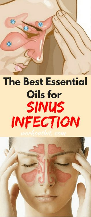 Viruses (such as cold), bacteria and fungi can all cause the cavities around your nose, eyes and cheeks to get inflamed and blocked. A sinus infection (sinusitis) is not easy to treat in a conventional way. When searching for an effective alternative reme