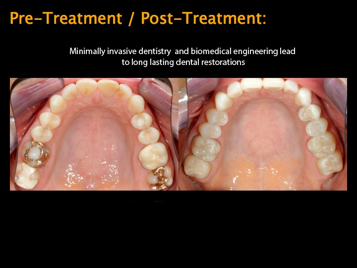 Pre-/Post Treatment with metal free restorations
