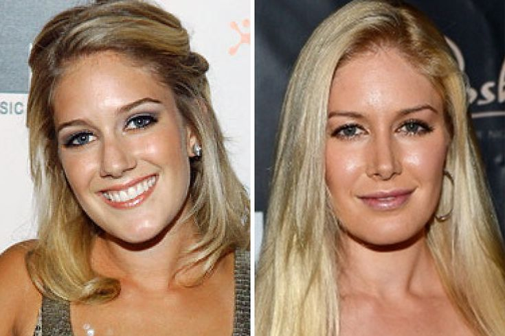 Heidi Montag: Spending an astonishing $30,000, Montag had a brow lift and a rhinoplasty while other surgeons pinned her ears, shaved her chin (and not with a razor). As if this wasn't enough, she also had two breast enhancements, her back scooped out, cheek augmentation with fat injections and liposuction on her outer and inner thighs!