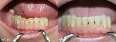 Los Angeles Dentist Dr. Kezian DDS also a Los Angeles Emergency Dentist is dedicated to restoring your teeth and gums and providing quality preventative dental care. Contact us and fix an appointment to get quality emergency dental care.