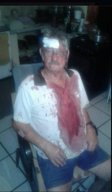 Farm attack today 1st march 2017. Bruce & Denise Harvey. A friend has been waiting there more than an hour for the police to come. This is what they do - make you wait and wait.