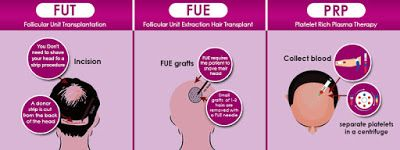 FUE technique of Hair Transplant in Gujarat, donor hair grows like natural hairs. These latest techniques of hair transplant are the highest-quality hair transplant techniques that can cope up with male pattern baldness and are available in India which bring back you natural Hair by the help of Best Hair Doctor in Ahmedabad at affordable Cost.     visit-http://hairclinicinahmedabad.blogspot.in/2017/03/find-out-latest-method-to-cope-up-with.html