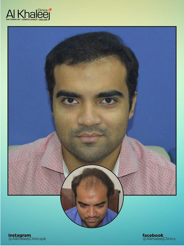 Best Hair Transplant In Pakistan Site Http Www Alkhaleejclinics Com Best Hair Transplant In Pakistan Best Hair Transplant Hair Transplant Cool Hairstyles