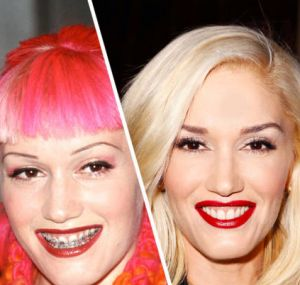 Gwen Stefani Braces And Celebrity On Pinterest