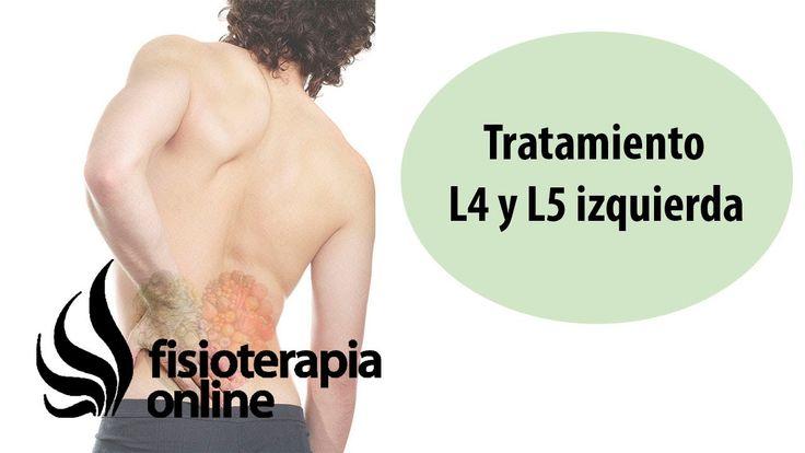 Tratamiento de la hernia discal L4 y L5 izquierda o cuarta y quinta vér...
