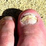 Will vinegar treat toenail fungus ?  Yes !  Athlete's Foot Too !