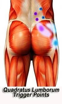 quadratus picture for back pain