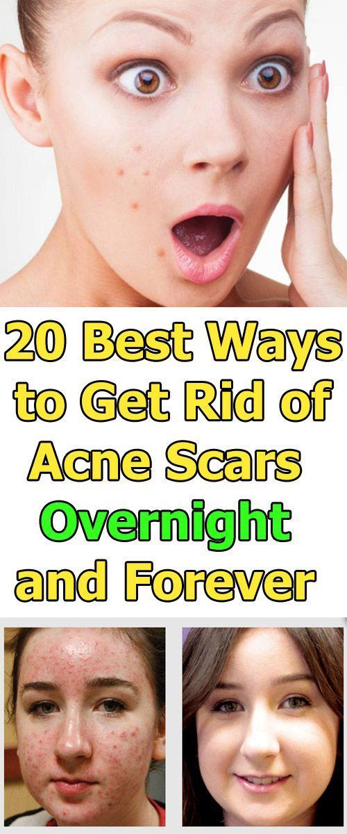 20 beste Möglichkeiten, Akne-Narben über Nacht u…