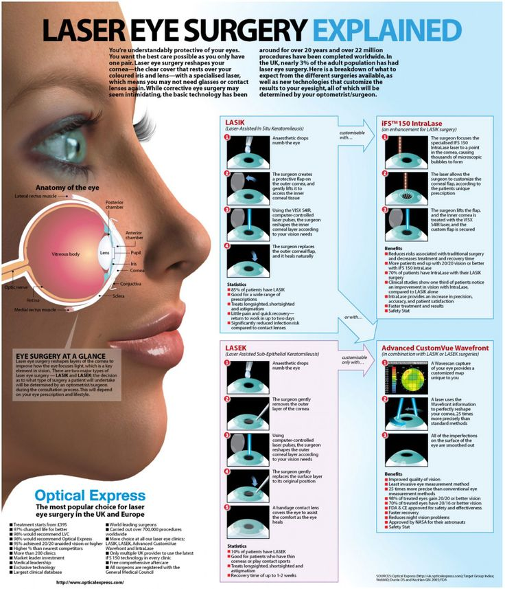 Laser Eye Surgery Explained. Had LASIK, 10 years ago, need glasses now and suffer from dry eyes. The procedure has no doubt improved In 10 years.......