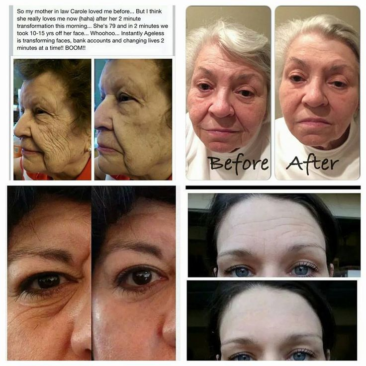 Try Instantly Ageless today!!!