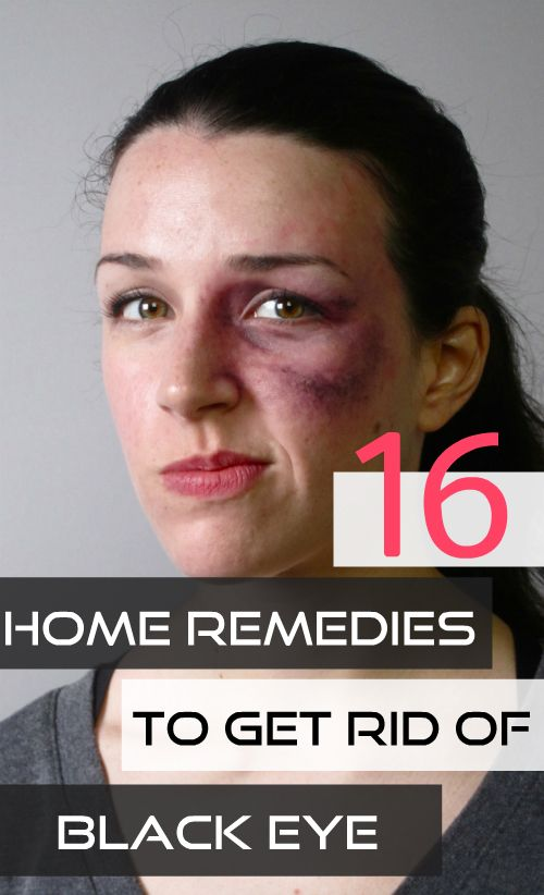 Home remedies for black eye are simple natural treatments that can help you get rid of bruising to the tissues surrounding the eye area.