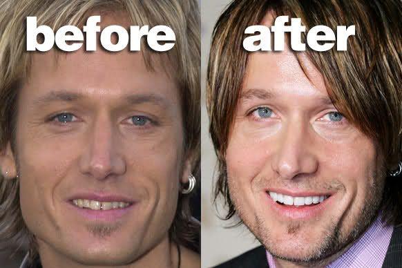 15 Most Shocking Celebrities Smile Makeover Before & After