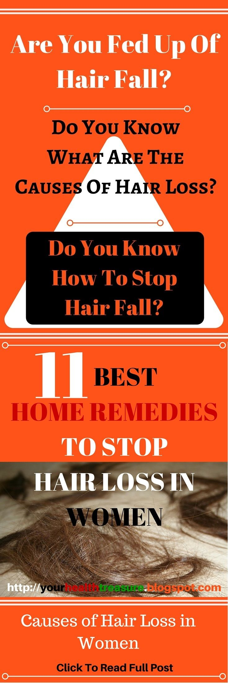 11 Home Remedies for Hair Loss in Women - Causes of Hair Loss in Women - Hair Falling Out, How To Stop Hair Fall, Home Remedies For Hair Fall, Prevent Hair Loss, Hair Loss Causes, How To Stop Hair Fall, Hair Loss, Hair Loss Treatment