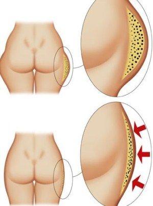 A Vibrolipoaspiração é uma técnica da Lipoaspiração. O tempo de cirurgia é diminuído em 35%, em média. Além disso, a Vibrolipo diminui a dor pós-operatória em 45%, bem como os hematomas e o tempo de recuperação.