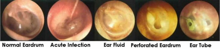 More of what your doctor sees when they look in your ear at the tympanic membrane