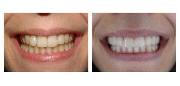 Λεύκανση δοντιών ZOOM AP