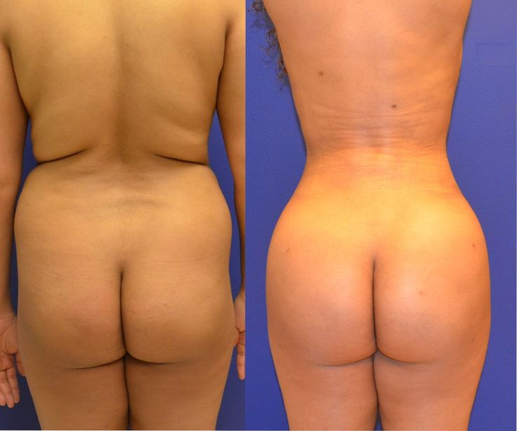 Brazillian Butt Lift with Liposuction and Fat Transfer