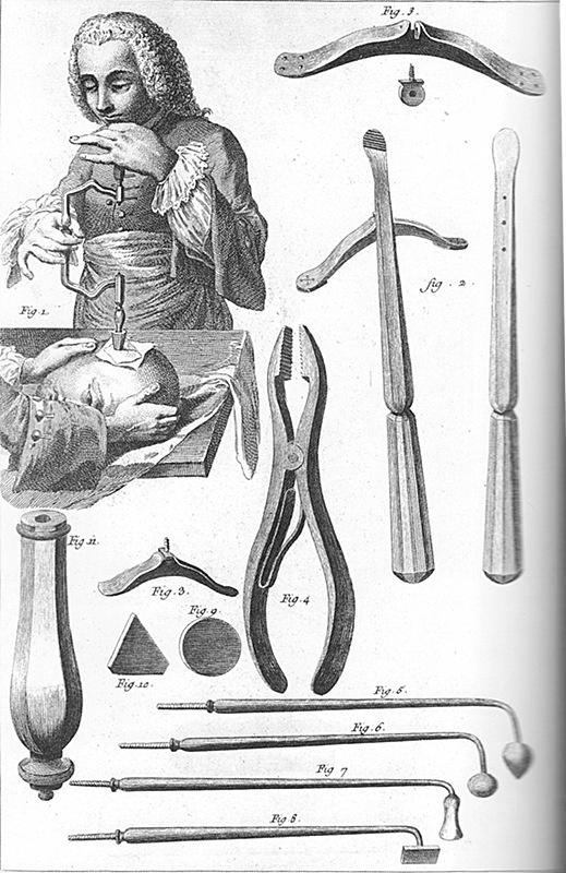 Chirurgie dans l'Encyclopédie de Diderot etD'Alembert.