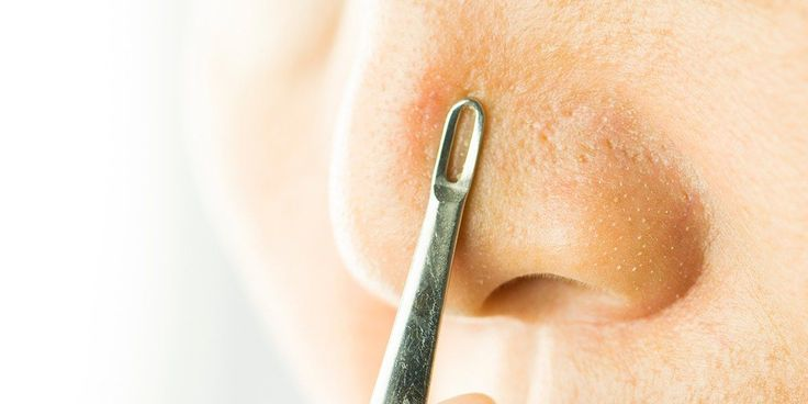 I Tried Popular DIY Blackhead Removal Hacks to See If They're Better Than Pore Strips