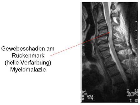 Bandscheibenvorfall Halswirbelsäule (HWS) | Galenus Klinik Stuttgart