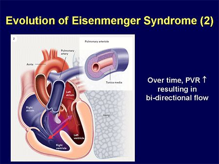 eisenmenger's syndrome - Google Search