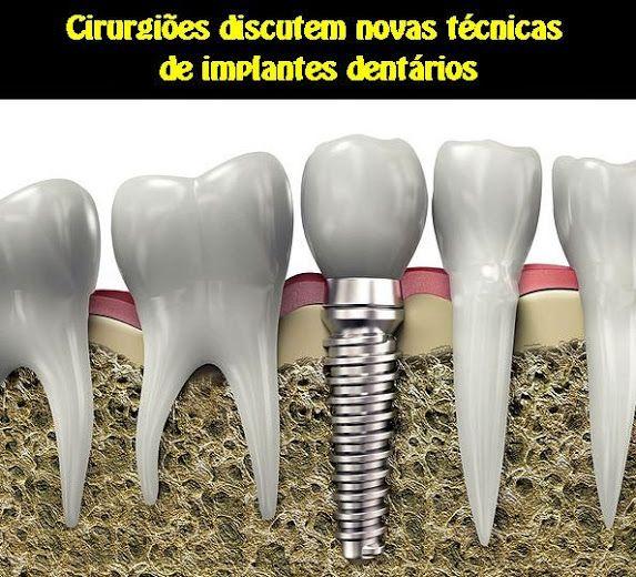Cirurgiões discutem novas técnicas de implantes dentários | OVI Dental
