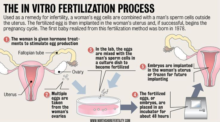 The In Vitro Fertilization Process  Visit our website www.northshorefertility.com or you may also call us at 847-763-8850 for consultation.  #ReproductiveEndocrinologist #InfertilitySpecialist #InfertilityClinic #AnneBorkowskiMD #NorthShoreFertility