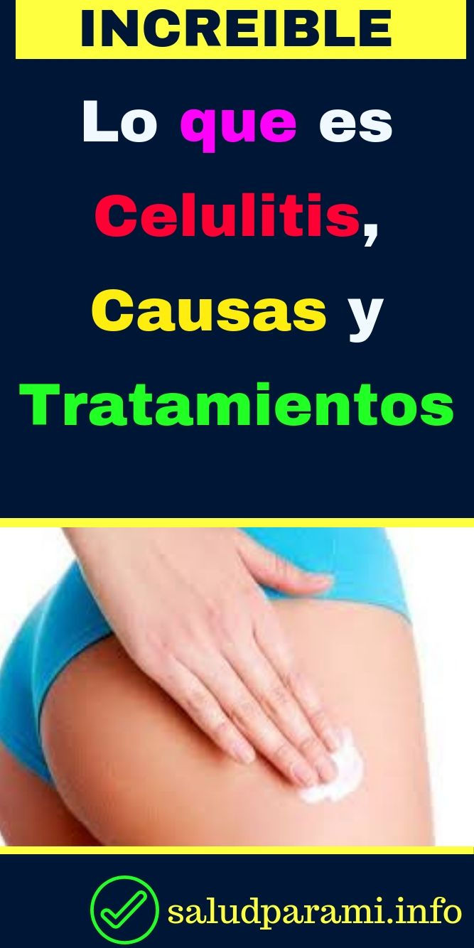 celulitis tratamiento y causas