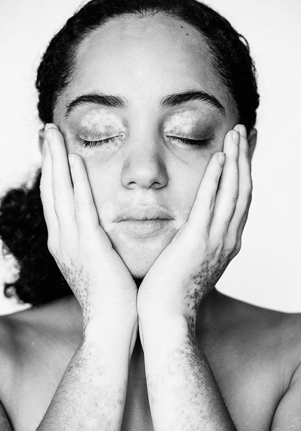 Vitiligo-Baring Photography : vitiligo #photo #b&w #black&white