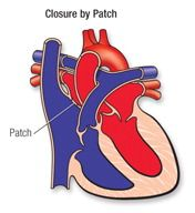 Closure by patch
