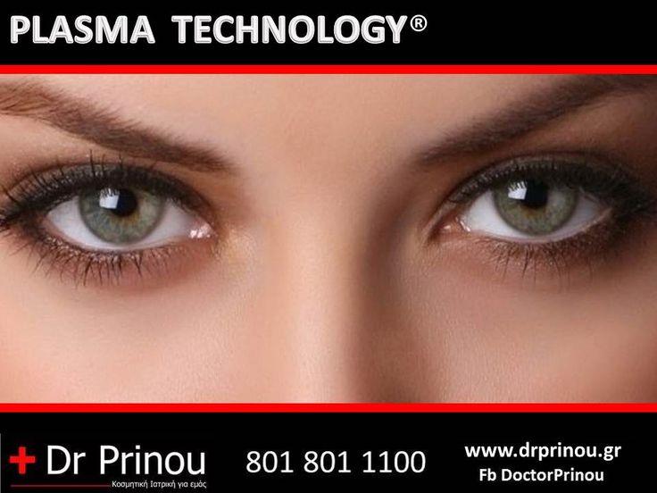 Dr Prinou - Call us free on : 801 801 1100 Το PLASMA TECHNOLOGY είναι η πιο σύγχρονη ιατρική αναίμακτη μέθοδος αντιμετώπισης της βλεφαροχάλασης στο ιατρειο σε λιγότερο από 60 λεπτά  Το PLASMA TECHNOLOGY κάνει χρήση της ύλης του Plasma. Το Plasma αναφέρεται σαν τέταρτη κατάσταση της ύλης, το οποίο είναι ιδιαίτερα ιονισμένο αέριο σε υψηλή θερμοκρασία. Είναι η πιο σύγχρονη τεχνολογία στην Ευρώπη στην κοσμητική ιατρική.