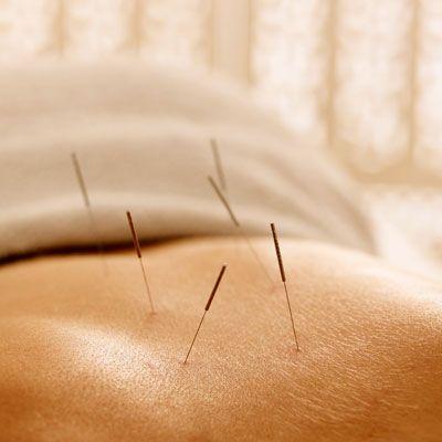 Acupuncture - 10 Alternative Therapies for Rheumatoid Arthritis - Health Mobile