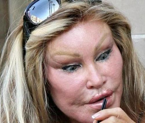 surgery fail 16 Losing at plastic surgery (27 photos)