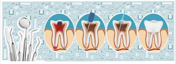 #Endodoncia precio. Cuanto cuesta una endodoncia - CLVM