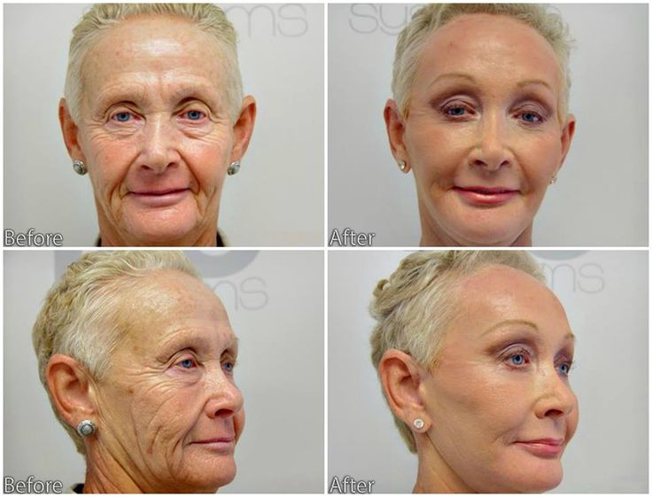 This patient had a face-lift, neck-lift, endoscopic brow-lift, fat grafting to the face and full face laser. She was exceptionally pleased with the change in her face.  Call us for a consultation (561)-912-9888  https://www.handalplasticsurgery.com
