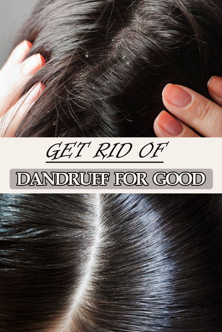 how to get rid of dandruff for guys