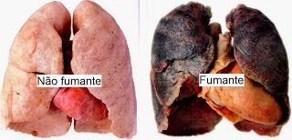 Jornal de Saúde: Câncer de pulmão não acomete só os fumantes