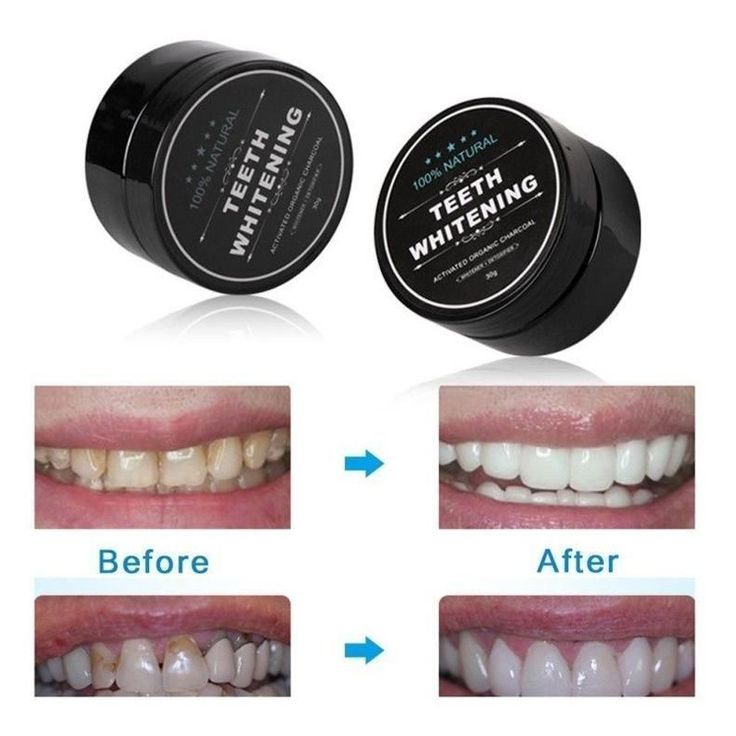 Violet Oral Care Routine Beauty Products #dentista…