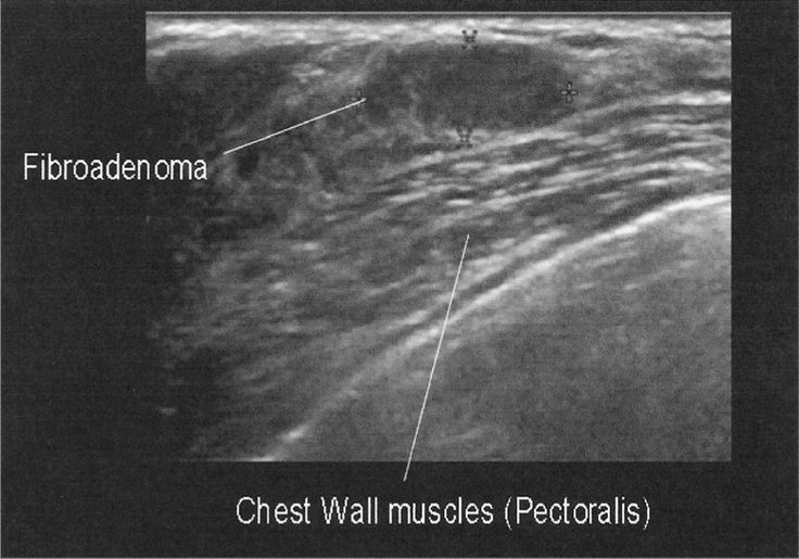 Typical appearance of the pectoralis muscle. Note the oval, parallel, circumscribed mass. This proved to be a benign fibroadenoma.