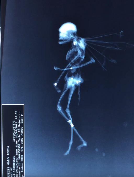 Fairy X-Ray