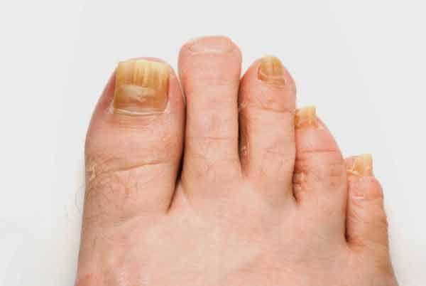 Un articol de Calin Petru Barbulescu Ca urmare a umiditatii, mucegaiului si bacteriilor, infectiile fungice pot aparea la picioare si la unghii, de cele mai multe ori fiind neplacute, dureroase si inestetice. Prima etapa a infectiei fungice este aparitia unor pete albe sau galbene in partea de sus a unghiei. Cu timpul, aceasta conditie de …